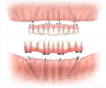 Teeth Implants - London