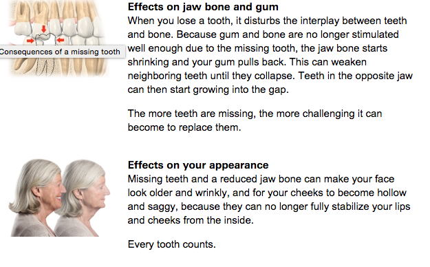 All on 4 Dental Implants - Teeth in a day - London